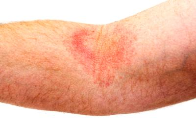 psoriasis on inside arm