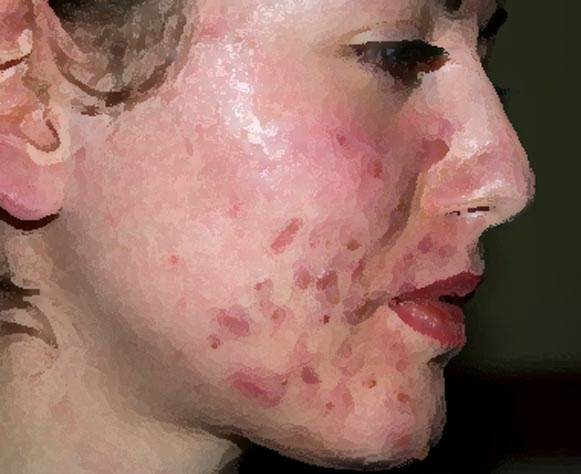 How Scars from Acne Affect Emotional & Mental Health