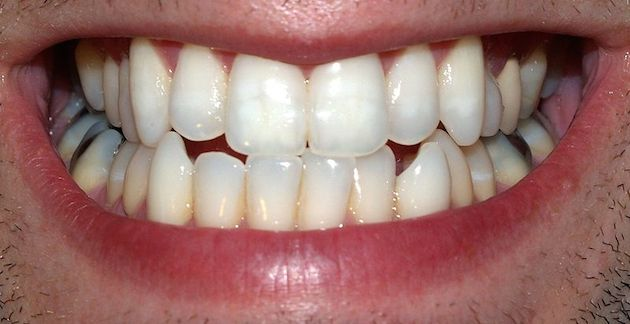 close up of smiling white teeth