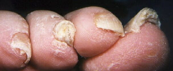 tips of toes showing nail fungus disease