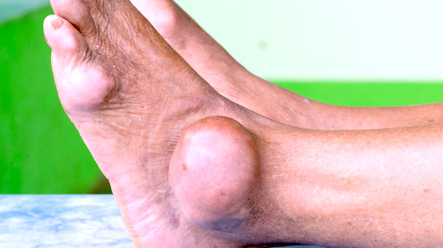gout in ankle and toe