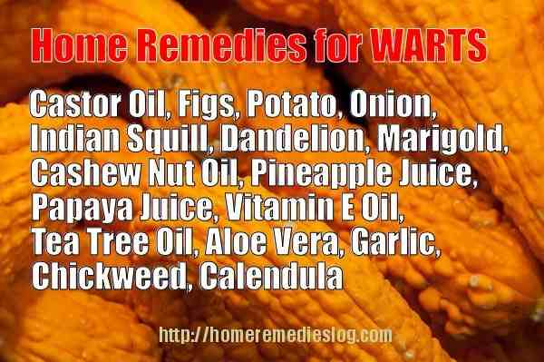 Home Remedies for Warts - Effective Natural Removal Methods