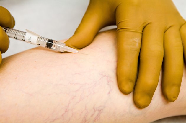 sclerotherapy varicose vein injection therapy
