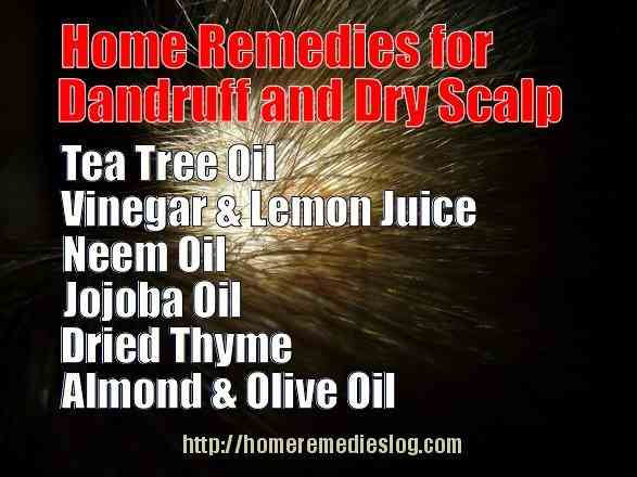 home remedies for dandruff and dry scalp - meme