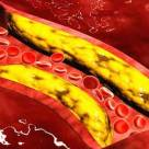 Lower Your Cholesterol Naturally to Improve Heart Health
