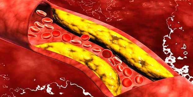 Illustration showing cholesterol in the blood