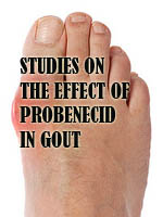 STUDIES ON THE EFFECT OF PROBENECID IN GOUT