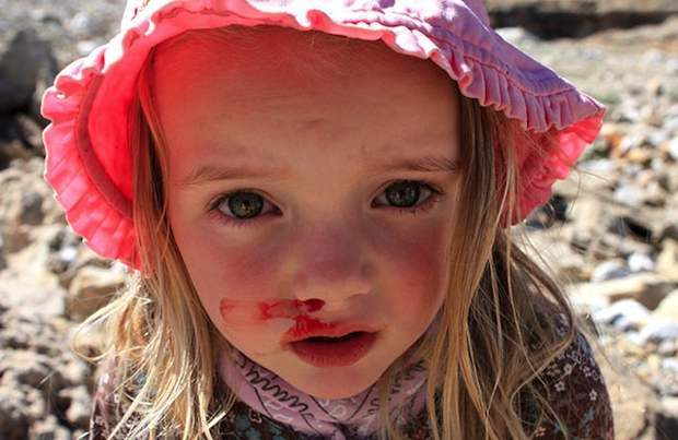 child with bloody nose
