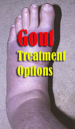 gout-treatment-options