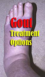 gout-treatment-options