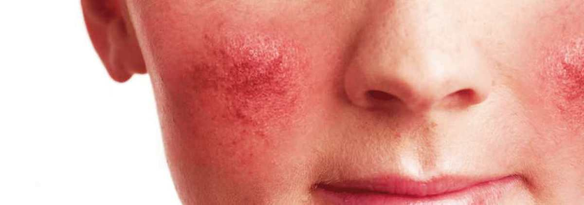 Rosacea on Face Cheek