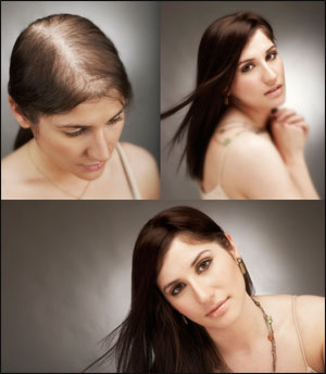 picture showing a woman in 3 different stages of hair growth