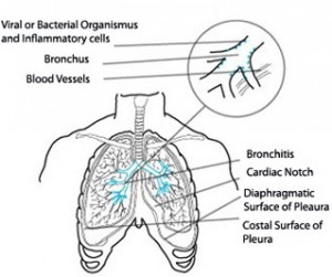 Acute Bronchitis diagram