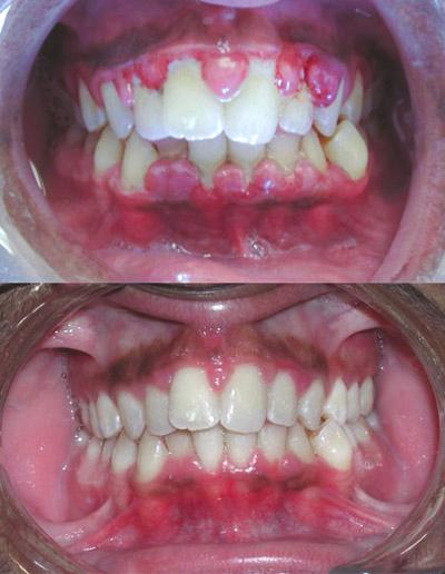 Gingivitis_before_and-after-