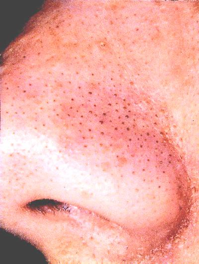Extreme close-up of blackheads on the nose