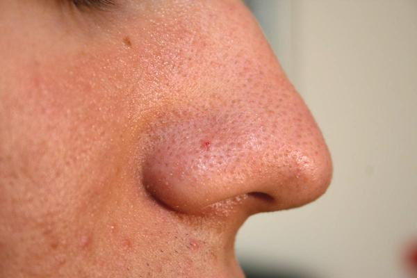 Close up cross section of blackheads on nose