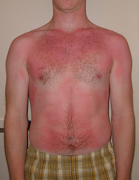 Man standing with severe Sunburn all over his chest and stomach area