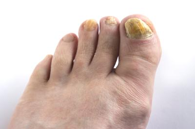 Yellow Toenails