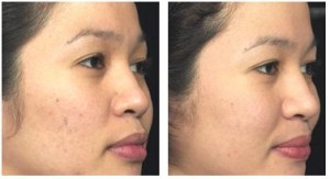 acne+scar+treatment-stages