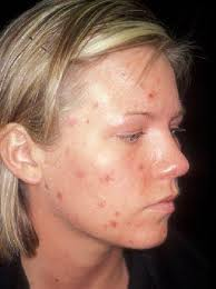 acne and spots showing on girls face