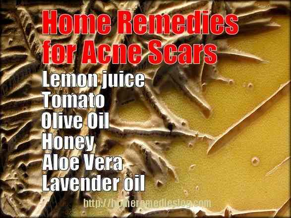 home remedies for acne scars - meme