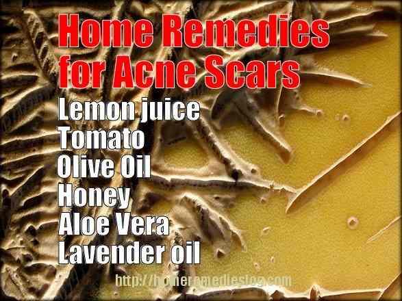 acne-scars remedies - meme