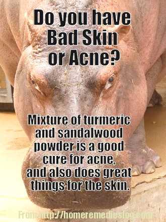 remedy for acne or bad skin - meme