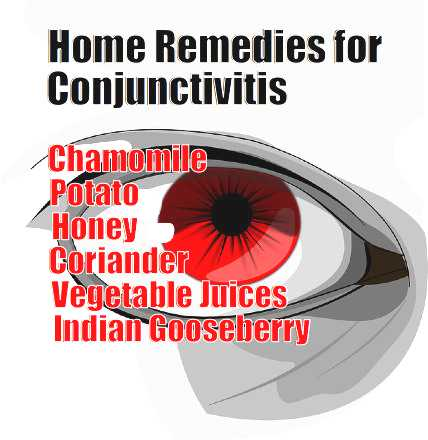 home remedies for conjunctivitis - meme