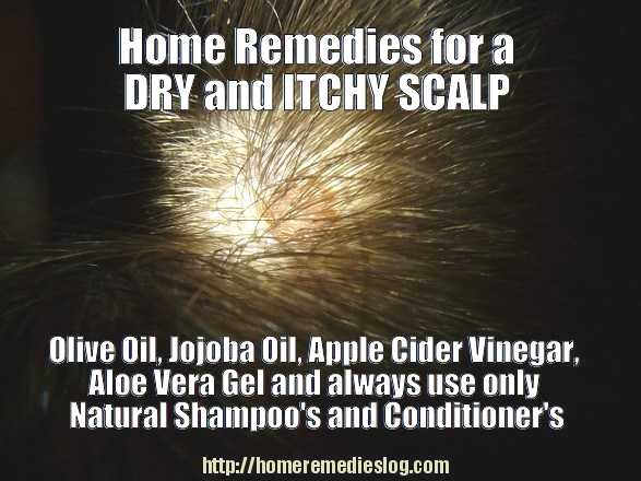 home remedies for a dry itchy scalp - meme