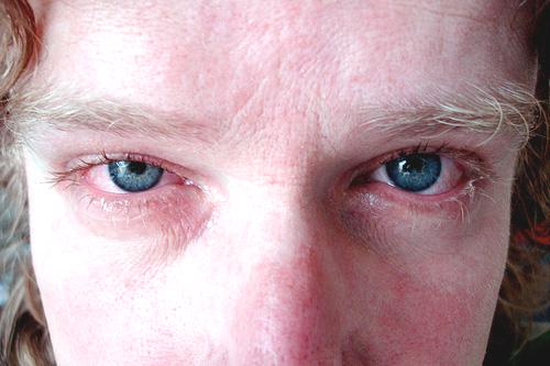 dry eye condition - close up of dry eyes