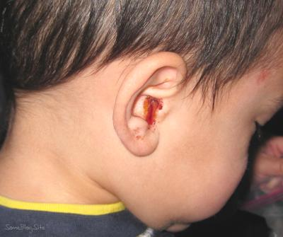 ear infection signs in child - blood in the ear