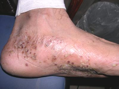 eczema on the bottom of the foot