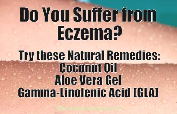 natural remedies for eczema - meme