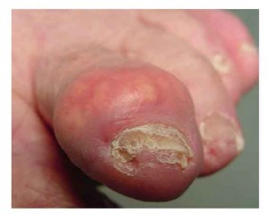 gouty+arthritis on toe