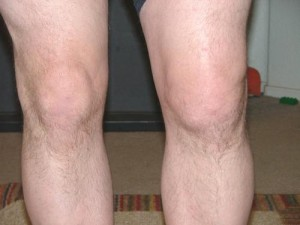 Swollen and stiff knee joint
