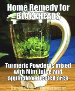 home remedy for blackheads - meme