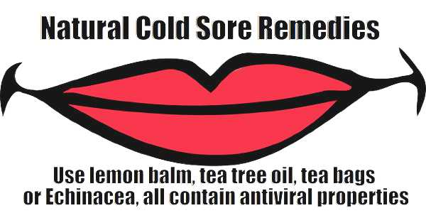 natural cold sores remedies - meme