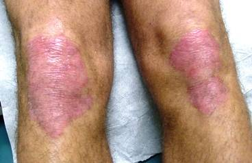 psoriasis of the knees