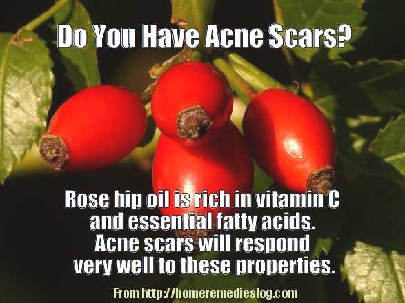 rose hip for acne scars - meme