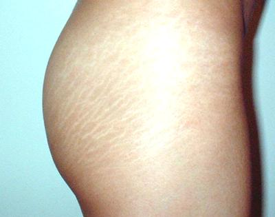 photo of stretch marks on thigh