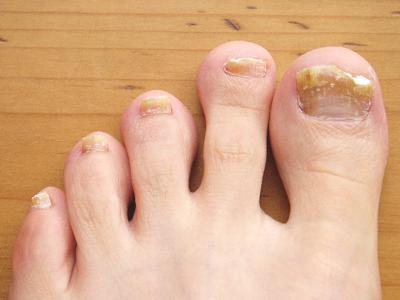 How to Get Rid of Yellow Toenails – Nail Fungus Treatment