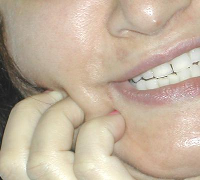 close up of womans jaw showing toothache pain