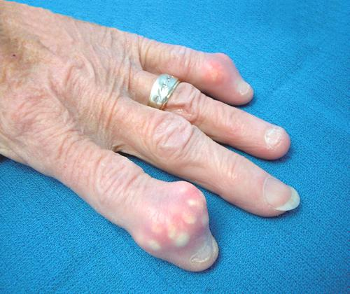 tophaceous gout of the fingers