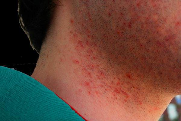 How to Get Rid of Razor Bumps – Tips and Tricks