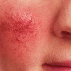 Fighting Rosacea the Ayurvedic Way