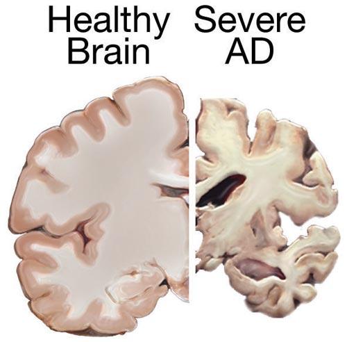 Natural Alzheimer's Prevention Remedies
