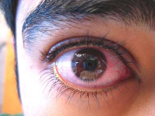 Home Remedies for Pink Eye and Conjunctivitis that Work