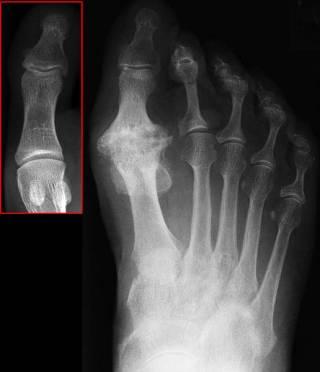 Osteoarthritis xray