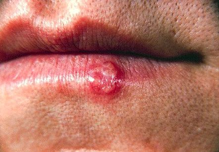 Home Remedies for Cold Sores – Controlling the Herpes Virus Lip Blister