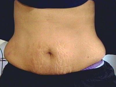 Home Remedies for Stretch Marks – Natural Removal Tips